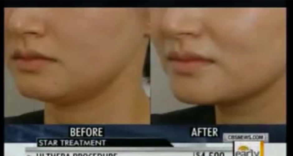 Get to know about non-surgical face lift with Ulthera technology.
