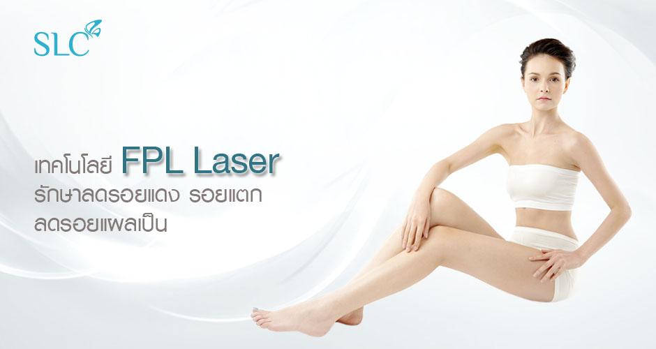 FPL Laser