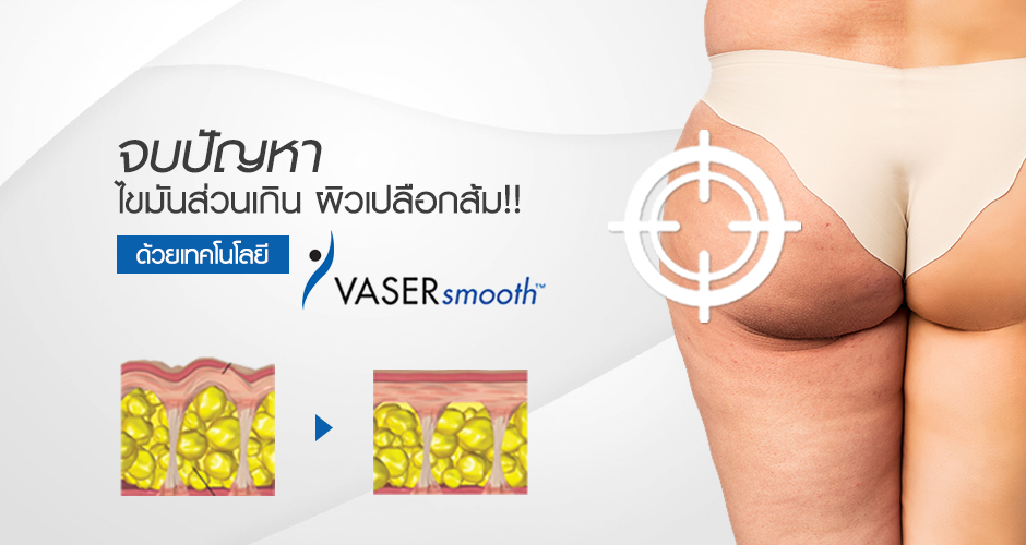 "Eliminate excess fat and cellulite or ""orange peel skin"" with ""Vaser Smooth"""