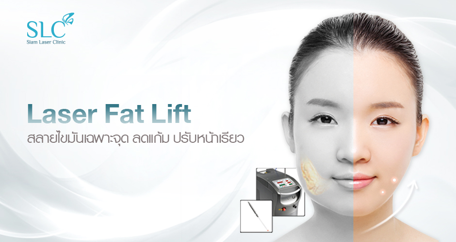 Laser Fat Lift