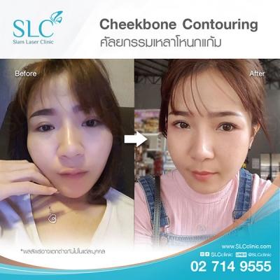 SLC Clinic - เหลาโหนกแก้ม 03