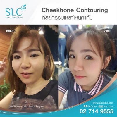 SLC Clinic - เหลาโหนกแก้ม 04