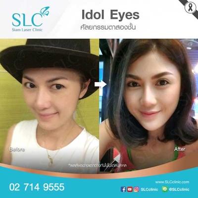 SLC Clinic - ตาสองชั้น ตาแบ๊ว ตาฝรั่ง ตาสายฝอ 03