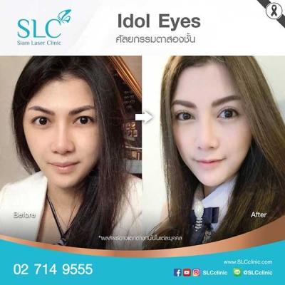 SLC Clinic - ตาสองชั้น ตาแบ๊ว ตาฝรั่ง ตาสายฝอ 02