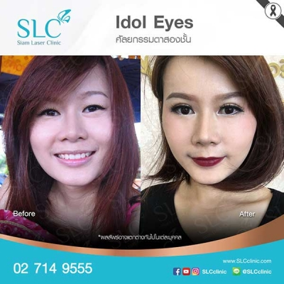 SLC Clinic - ตาสองชั้น ตาแบ๊ว ตาฝรั่ง ตาสายฝอ 01