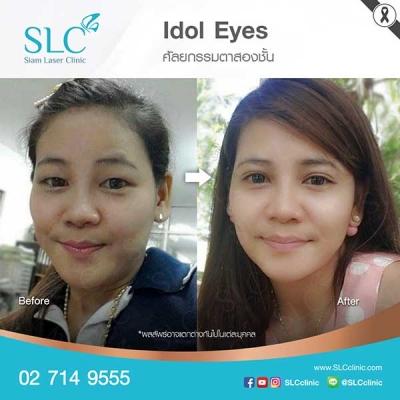 SLC Clinic - ตาสองชั้น ตาแบ๊ว ตาฝรั่ง ตาสายฝอ 06