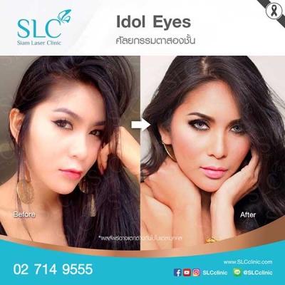 SLC Clinic - ตาสองชั้น ตาแบ๊ว ตาฝรั่ง ตาสายฝอ 04