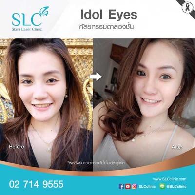 SLC Clinic - ตาสองชั้น ตาแบ๊ว ตาฝรั่ง ตาสายฝอ 07