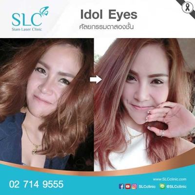 SLC Clinic - ตาสองชั้น ตาแบ๊ว ตาฝรั่ง ตาสายฝอ 08