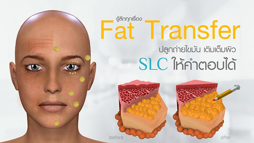 รู้ลึก เรื่องปลูกถ่ายไขมัน หน้าเด็ก FAT TRANSFER เติมเต็มผิว