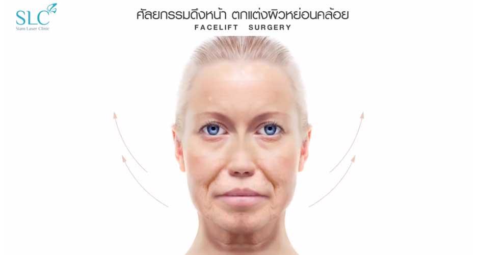 การผ่าตัดดึงหน้า สำหรับผู้ที่มีปัญหาผิวหย่อนคล้อย ริ้วรอยที่หน้าผาก ร่องแก้มลึก