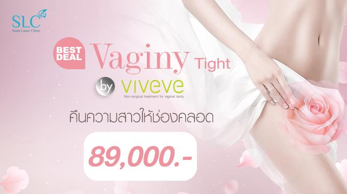 "BEST DEAL! VAGINY TIGHT BY ""VIVEVE"" คืนความสาวให้ช่องคลอด 89,000.- (ปกติ160,000.-)"