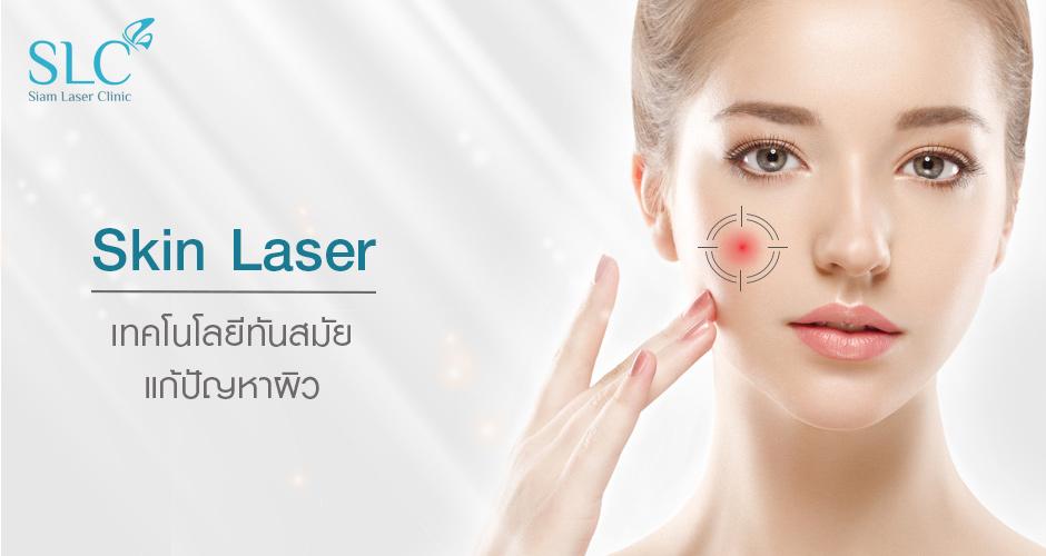 Skin Laser