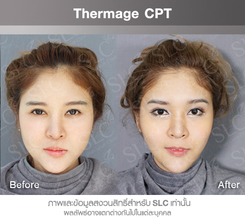 Ulthera Thermage HIFU is a technology for skin lifting, restoring