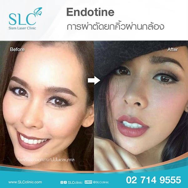 ยกคิ้ว Endotine