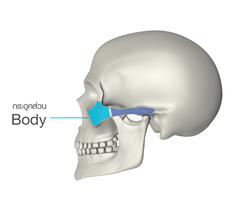 1  the body of zygoma has a different thickness, depending on the  individual  it consists of the maxillary sinus (air cavities) without any  special