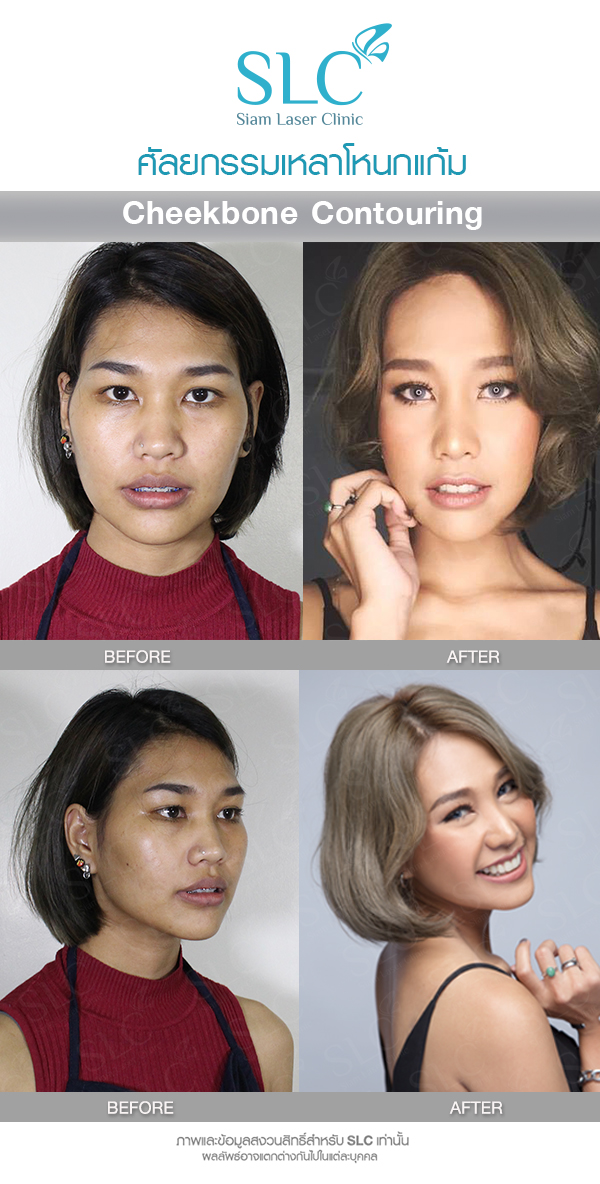 Cheekbone Contouring Surgery Is A Solution For People Who Would