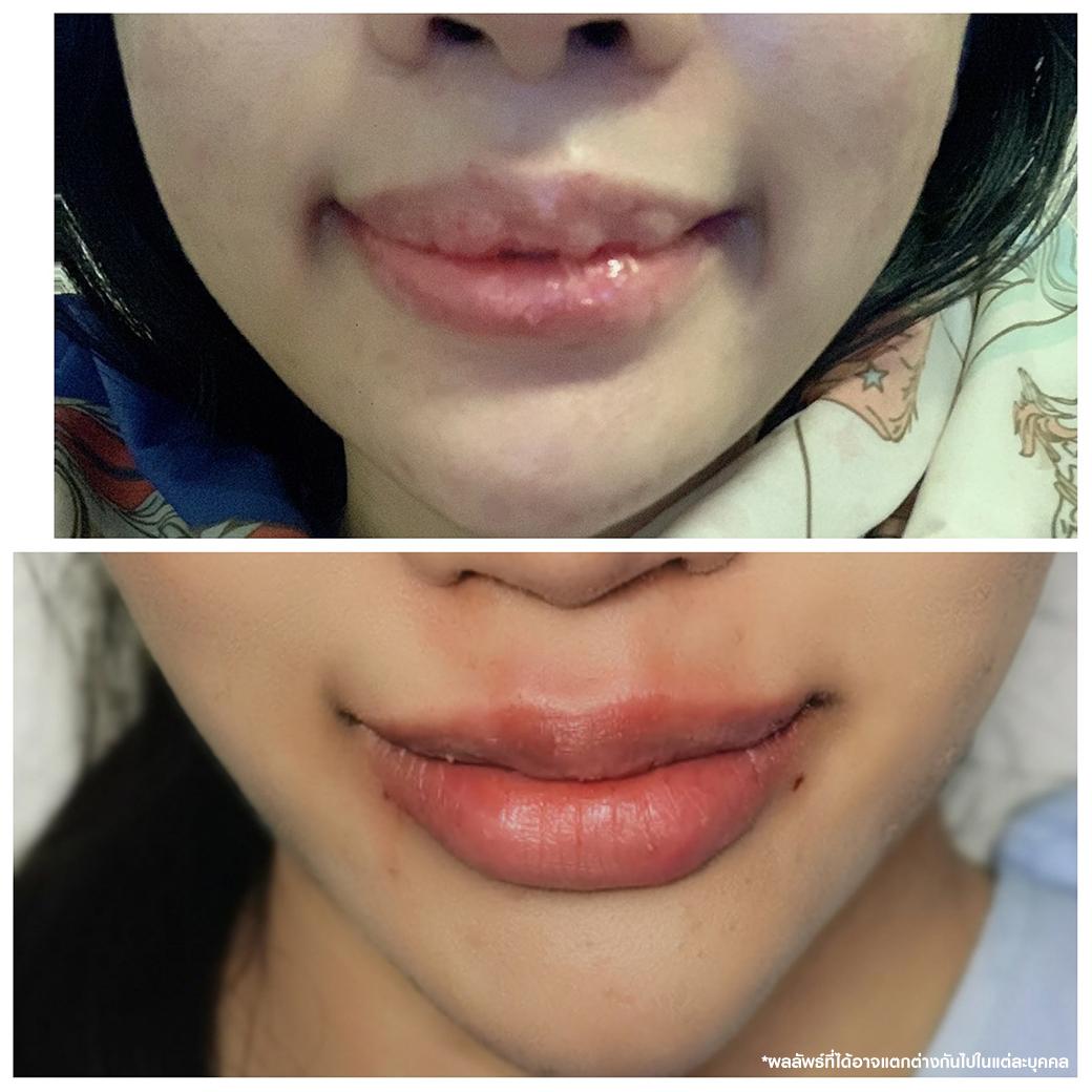 ปัญหาฉีดปาก