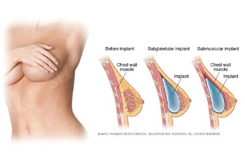 Latest breast enhancement techniques