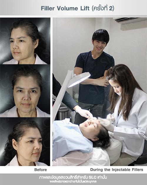 เม้าส์ นิกกี้ เสาวลักษณ์ จันทพันธ์  Suegery ศัลยกรรม  ผ่าตัดส่องหล้อง ยกคิ้ว ยกหน้าผาก