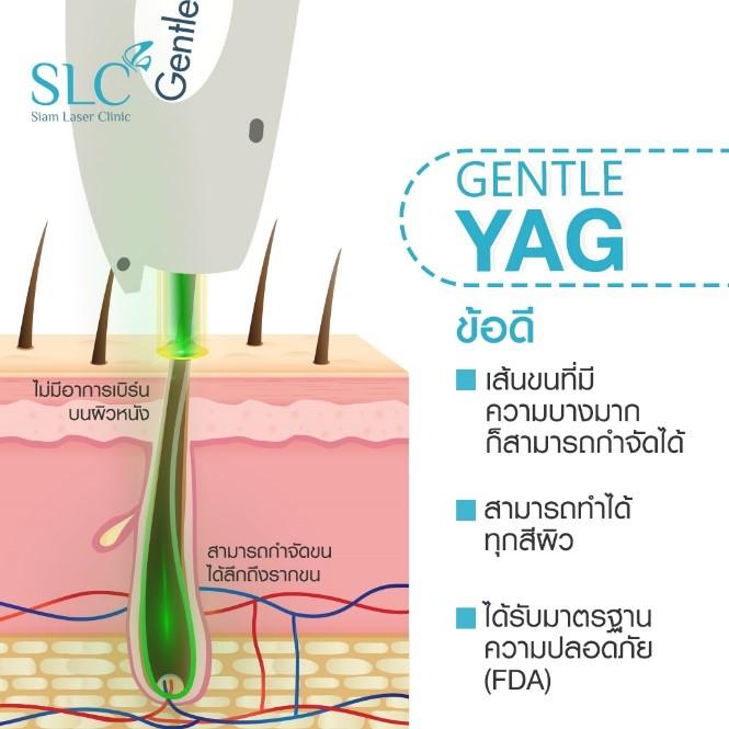 ทำไมต้องเลเซอร์กำจัดขนด้วย Gentle YAG Laser