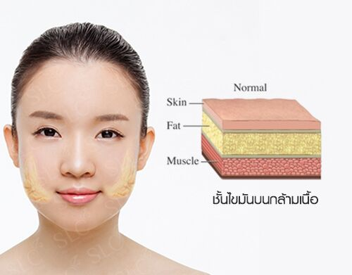 2 Techniques To Reduce Buccal Pad Fat To Get Rid Of Chubby Cheeks