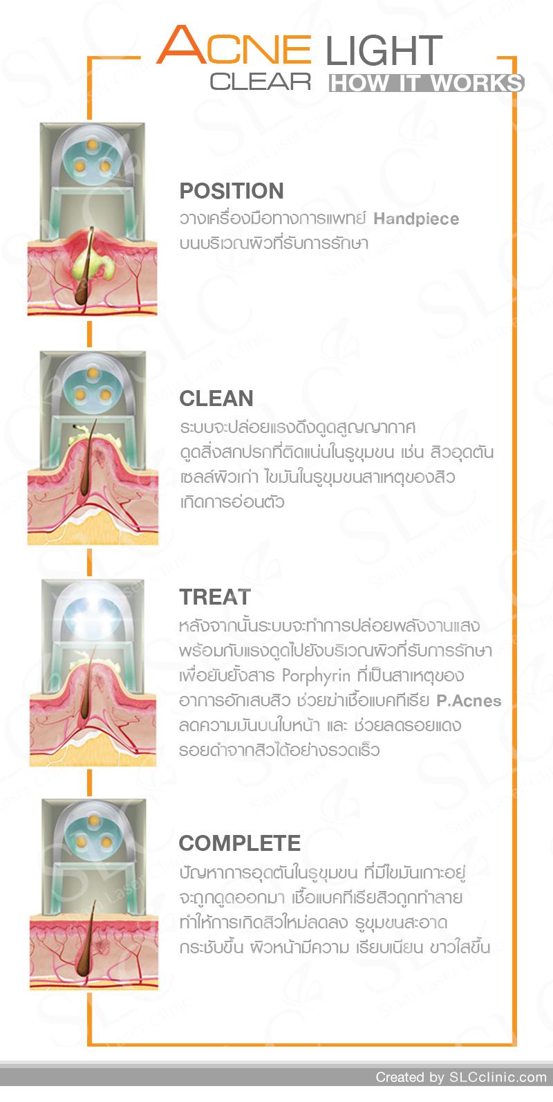ขั้นตินการรักษาสิว SLC