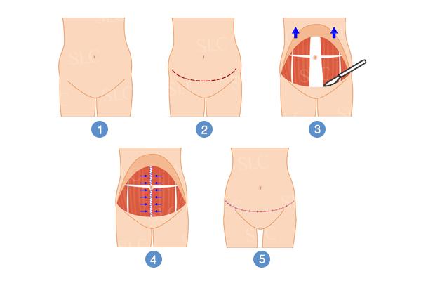 ศัลยกรรม ตัดหนังหน้าท้อง ผ่าตัดกระชับหน้าท้อง แบบไม่ย้ายสะดือ