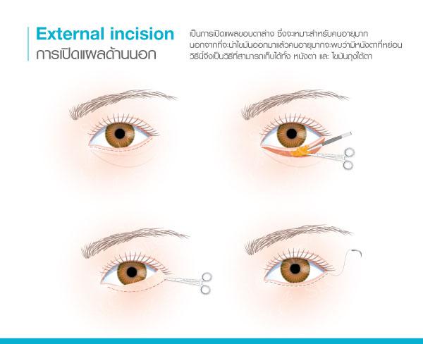 ผ่าตัดถุงใต้ตา แผลนอก