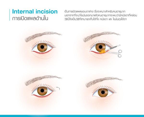 ผ่าตัดถุงใต้ตา แผลใน
