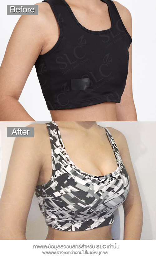 Breast Augmentation ทำนม