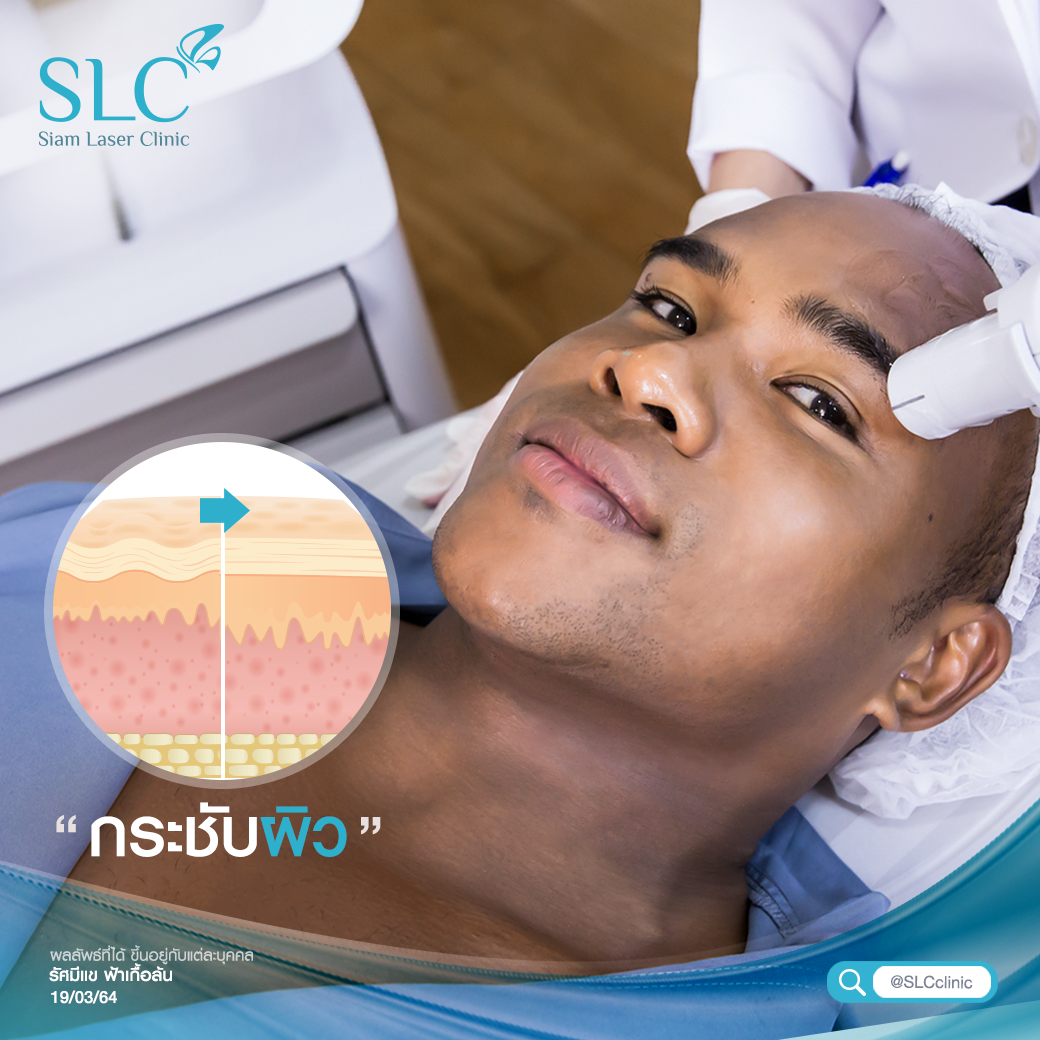 Ultherapy SPT